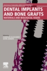 Dental Implants and Bone Grafts : Materials and Biological Issues - Book