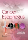 Cancer Esophagus - Book