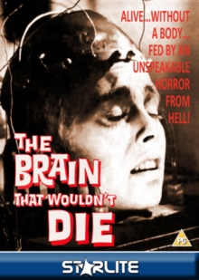 The Brain That Wouldn't Die, DVD DVD