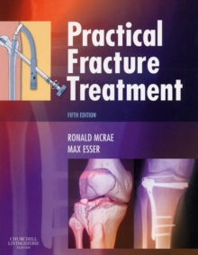 Practical Fracture Treatment, Paperback Book