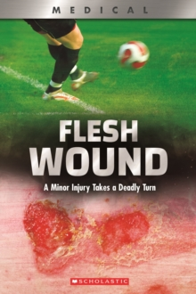Flesh Wound (XBooks) : A Minor Injury Takes a Deadly Turn, Paperback Book