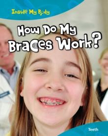 How do my Braces Work?, Paperback Book