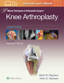 Master Techniques in Orthopedic Surgery: Knee Arthroplasty, Hardback Book