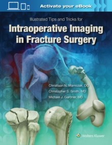 Illustrated Tips and Tricks for Intraoperative Imaging in Fracture Surgery, Hardback Book