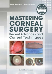 Mastering Corneal Surgery : Recent Advances and Current Techniques