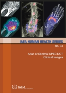Atlas of Skeletal SPECT/CT Clinical Images, Paperback / softback Book