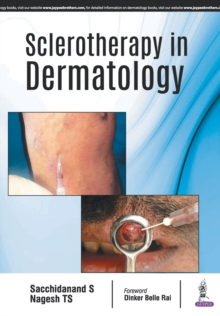 Sclerotherapy in Dermatology, Paperback / softback Book